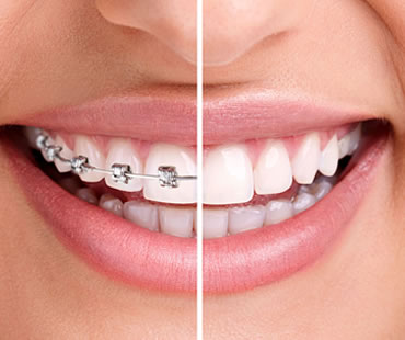 Advantages of Invisalign