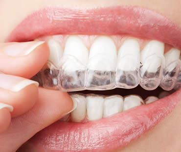 Invisalign: Straightening Teeth Without Braces