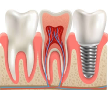 When to Choose Mini Dental Implants