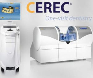 Frequently Asked Questions About CEREC