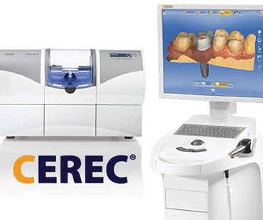 Can You Benefit from CEREC?